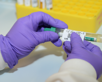Picture of labelling a testube