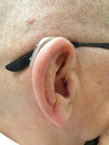 Behind – the –ear (BTE) digital hearing aid with an open fitting