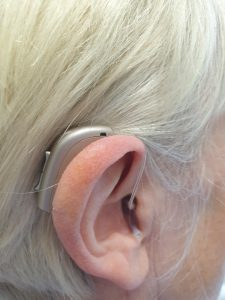 Receiver in the ear (RITE) hearing aids